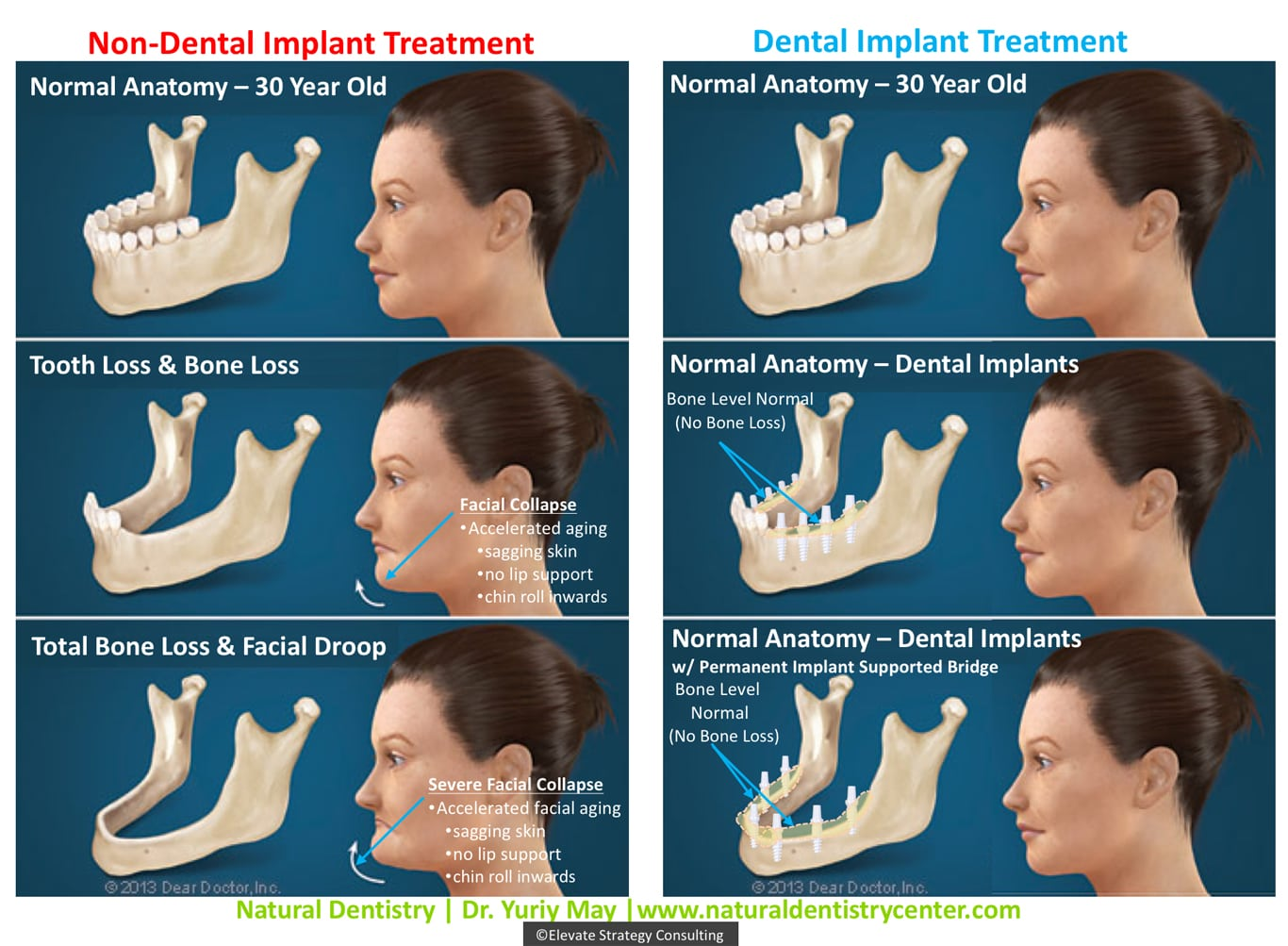Dental Face Lift Dr. Yuriy May Connecticut | Best Dental Implant Surgeon Connecticut | Dental Implant Dentist Connecticut | Full Smile Reconstruction