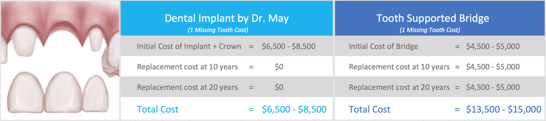 Zirconia Dental Implants Dr Yuriy May Metal Free 3d Tooth Diagram Additionally Parts Of A Bridge For Teeth Implant Costs Are Not Only Healthier But Cost Less In The Long Run Than Bridges