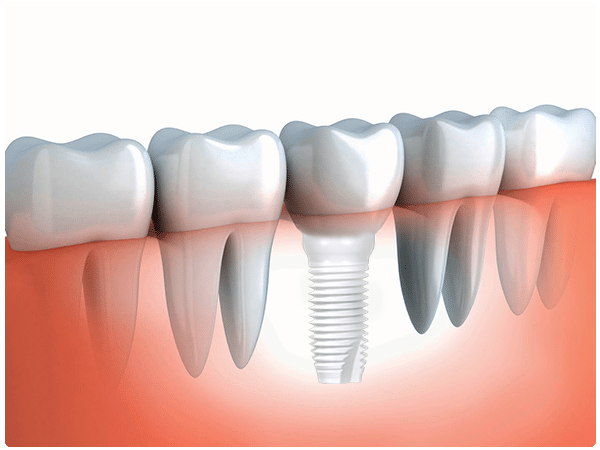 Zirconia Dental Implants Natural Dentistry Center NY CT MA RI PA FL NYC NJ VA VT NH