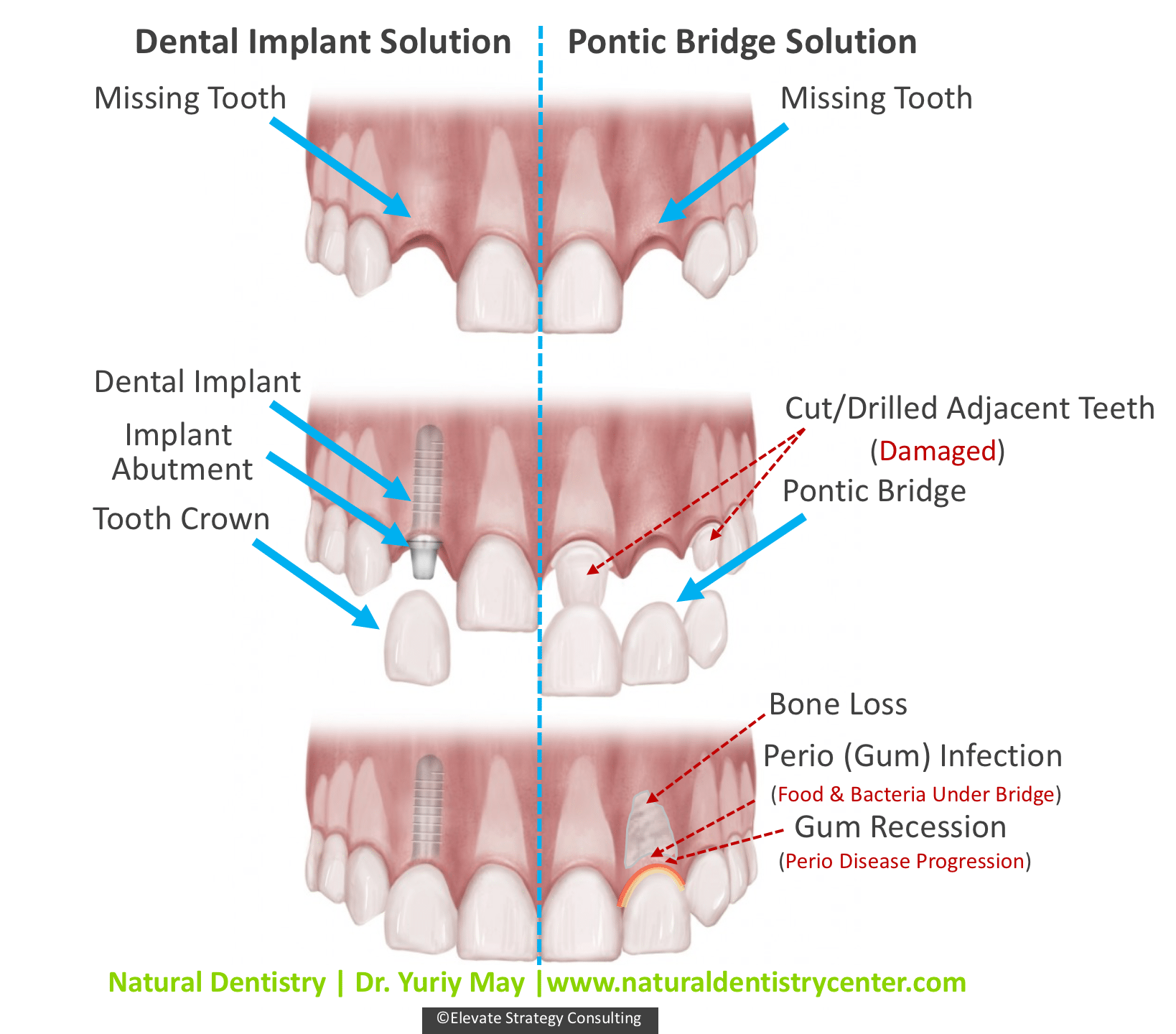 Dental Implant vs Bridge | Dr May | Best Dental Implant Dentist CT