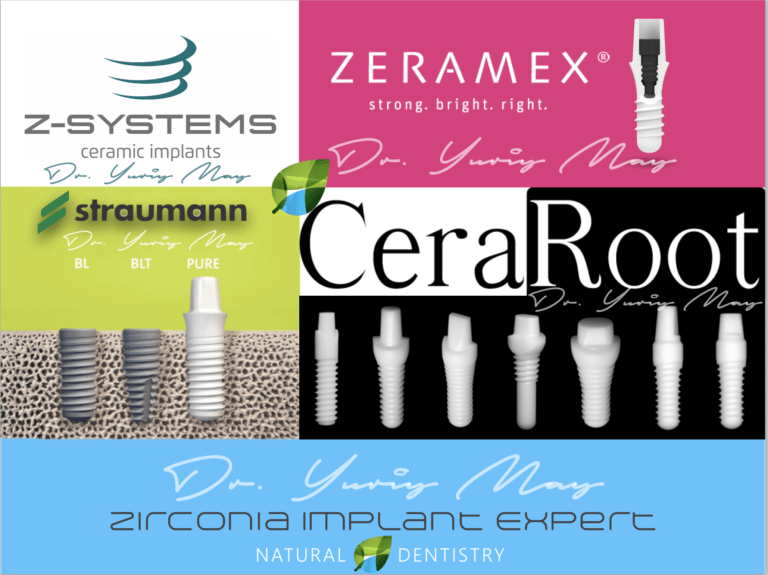 Best Zirconia Implant Surgeon USA Dr. Yuriy May Z Systems Zeramax Ceraroot Zirconia Implants USA CT NYC NY NJ RI FL PA MA