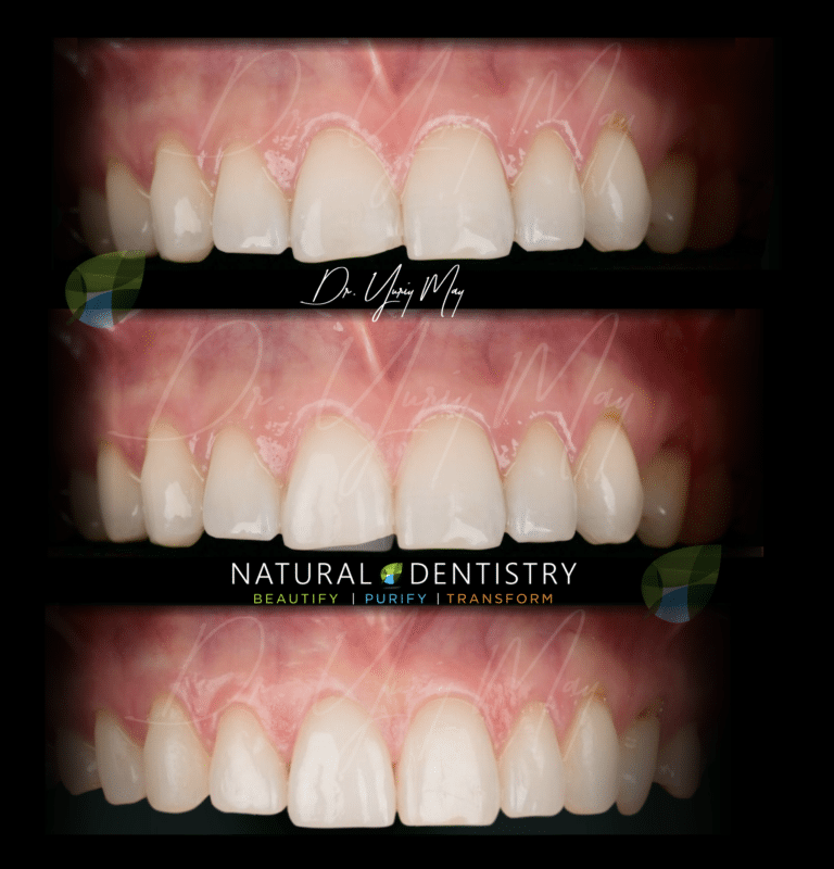 Cosmetic Dentist CT Best Cosmetic Dentist NY NJ CT Smile Makeover Veneers Dr. Yuriy May Celebrity Smile Dentist Natural Smile Makeover