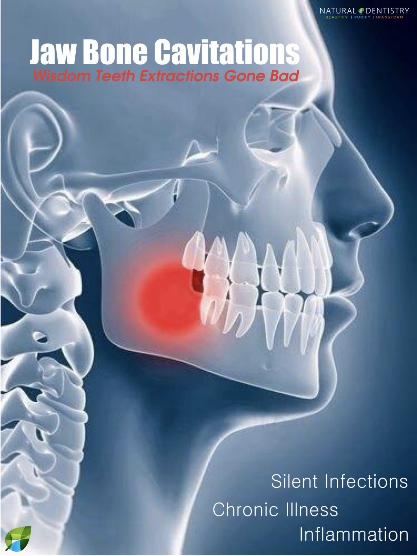 Dental Cavitations Jaw Bone Infections