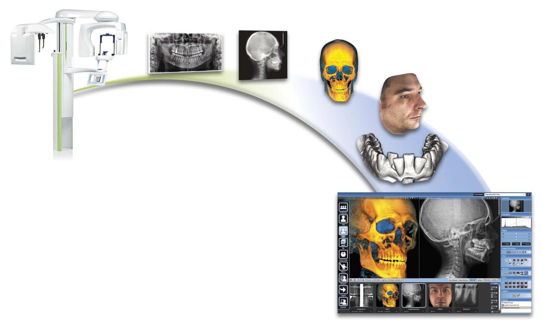 CBCT 3D Dentistry, Dental Cavitations Jaw Bone Infections Cavitation Jaw Infection Cavitation Surgery Best Holistic Dentist Cavitation Dentist