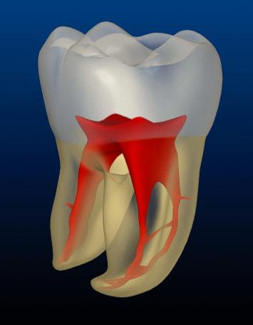 Endodontist Alternative, Root Canal Alternative, Root Canal Danger | Holistic Dentist Connecticut New York New Jersey Rhode Island