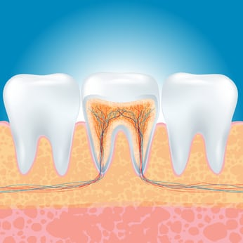 Alternative Root Canals from Biological Holistic Dentist Dr. Yuriy May
