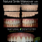 Best Cosmetic Dentist Connecticut New York Porcelain Veneers Hollywood Smile Cosmetic Dentist Veneers Natural Dentistry Dr. Yuriy May
