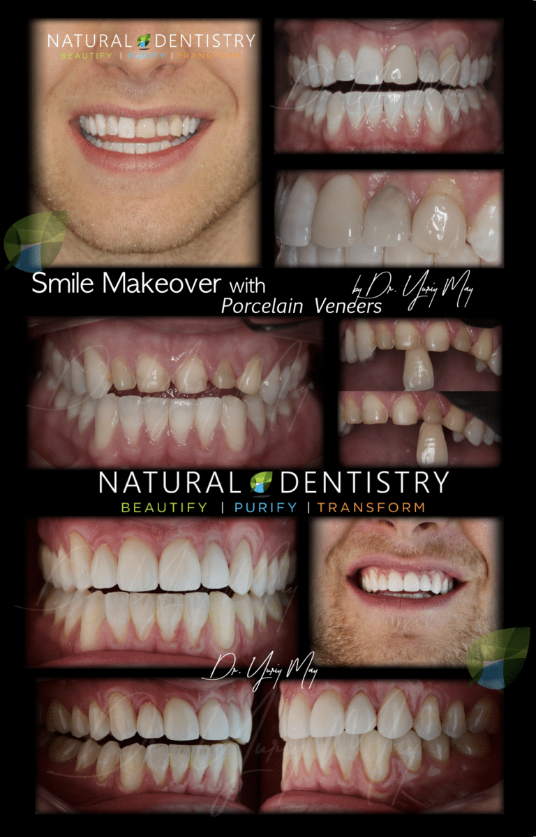 Best Cosmetic Dentist NY CT NJ MA Natural Smile Makeover Natural Dentistry Dr. Yuriy May Veneers Holistic Dentist