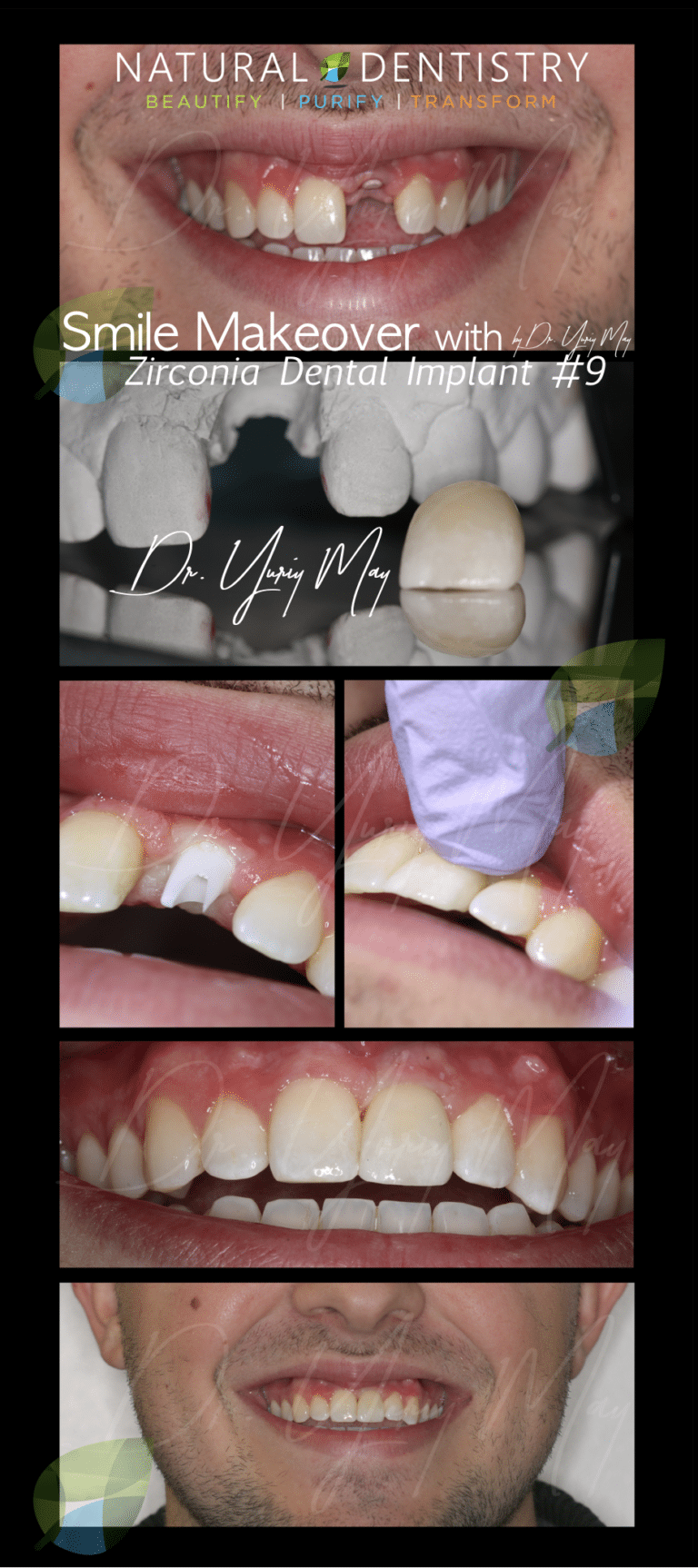 Best Cosmetic Dentist NY CT NJ MA Zirconia Dental Implants | Natural Dentistry Dr. Yuriy May Veneers