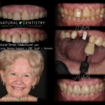 Best Zirconia Implant Surgeon Biological Dentist CT NY NJ MA RI Dr. Yuriy May Smile Makeover Root Canal Alternative Ceramic Implant Veneers Cosmetic Dentist