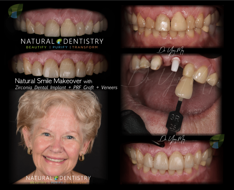 Smile Makeover Zirconia Implant Veneers
