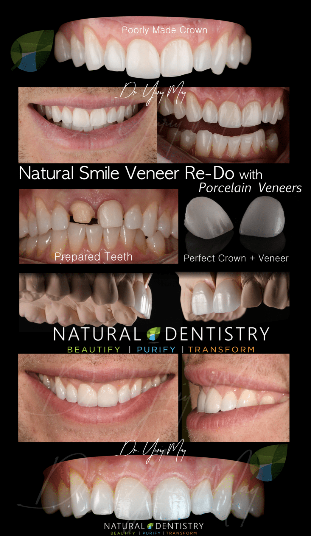 Botched Dental Veneers Re-Do | Top Cosmetic Dentist Smile Makeover Fix Bad Veneers Dr. Yuriy May CT NJ NY MA RI