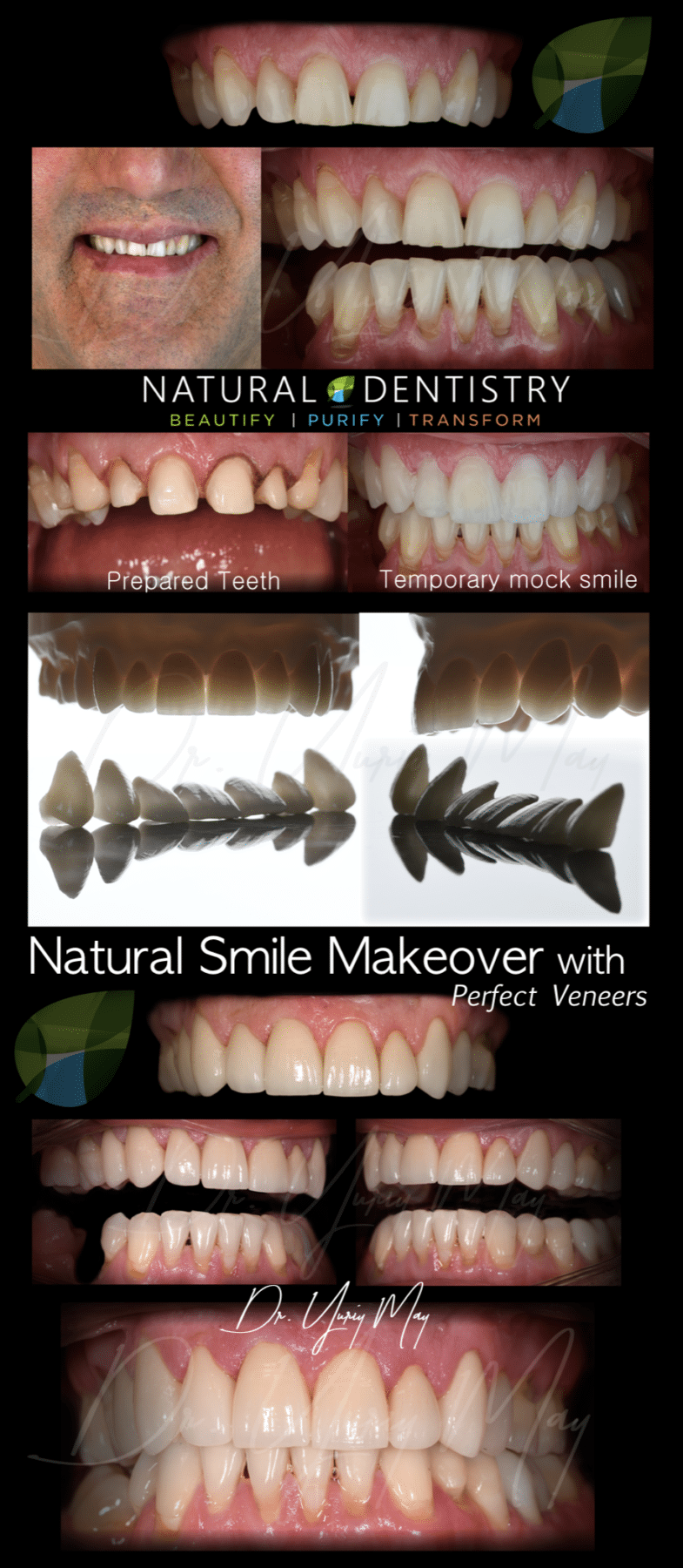 Dental Porcelain Veneers Celebrity Smile Makeover Best Cosmetic Dentist CT NY NJ MA RI Dr. Yuriy May | Veneers