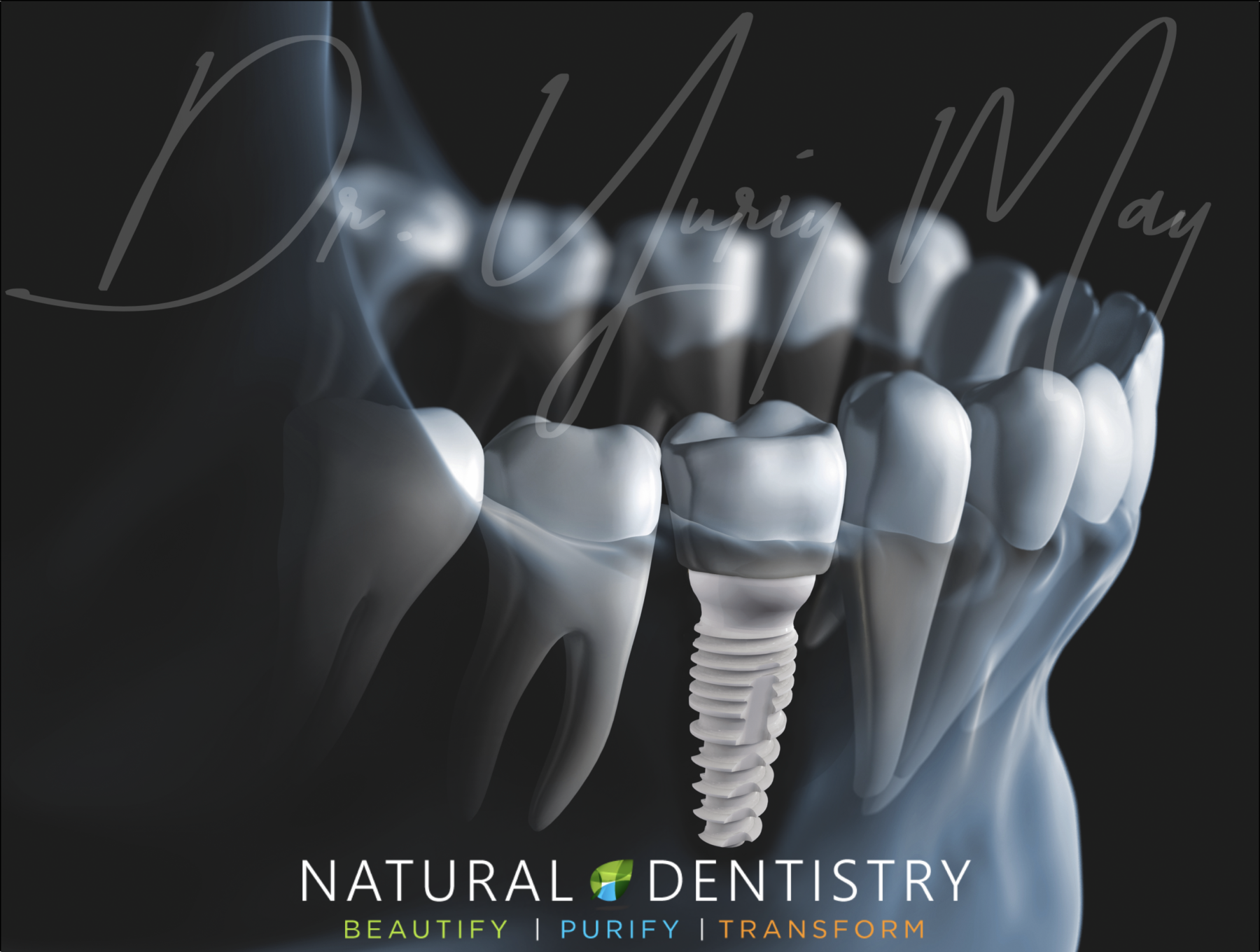 Zirconia Dental Implant Surgeon Dr. Yuriy May Ceramic Dental Implant Dentist USA CT NY NJ