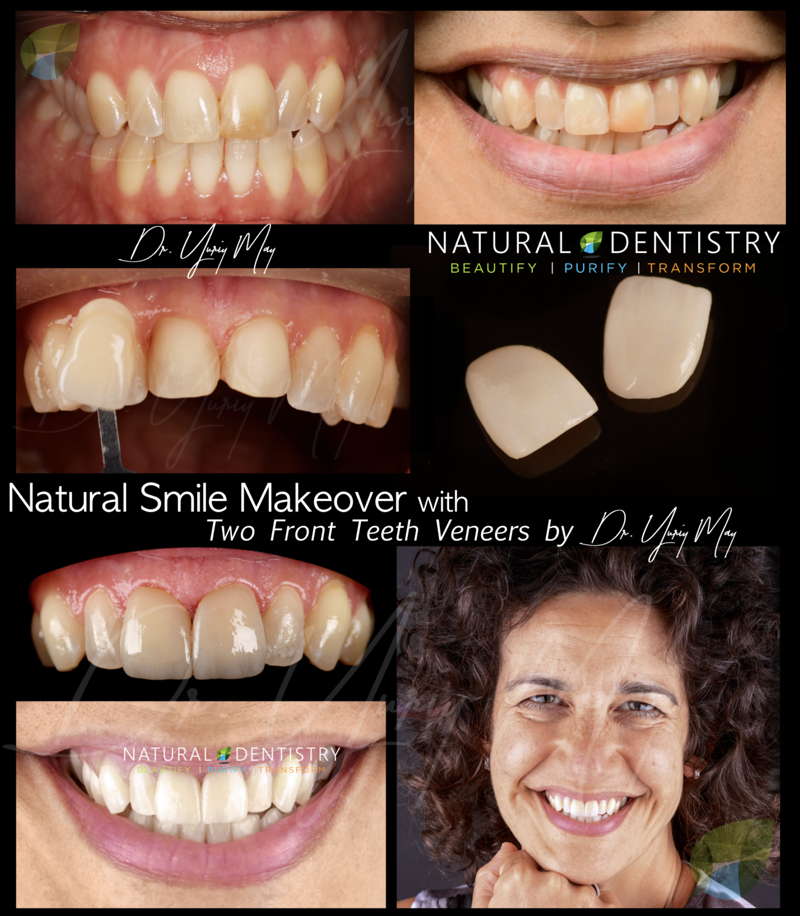 Best Cosmetic Dentist CT Dr. Yuriy May Connecticut Porcelain Veneers Cosmetic Dentistry Before After