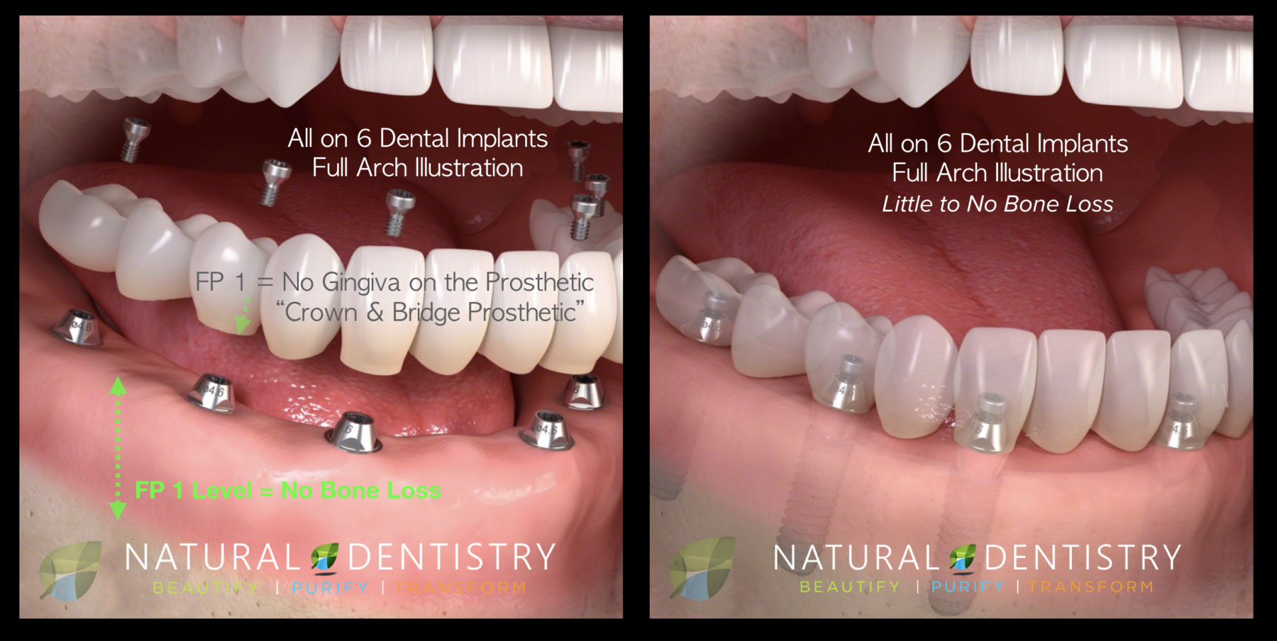 All on 6 Dental Implants Full Mouth Reconstruction Best Dentist Implants