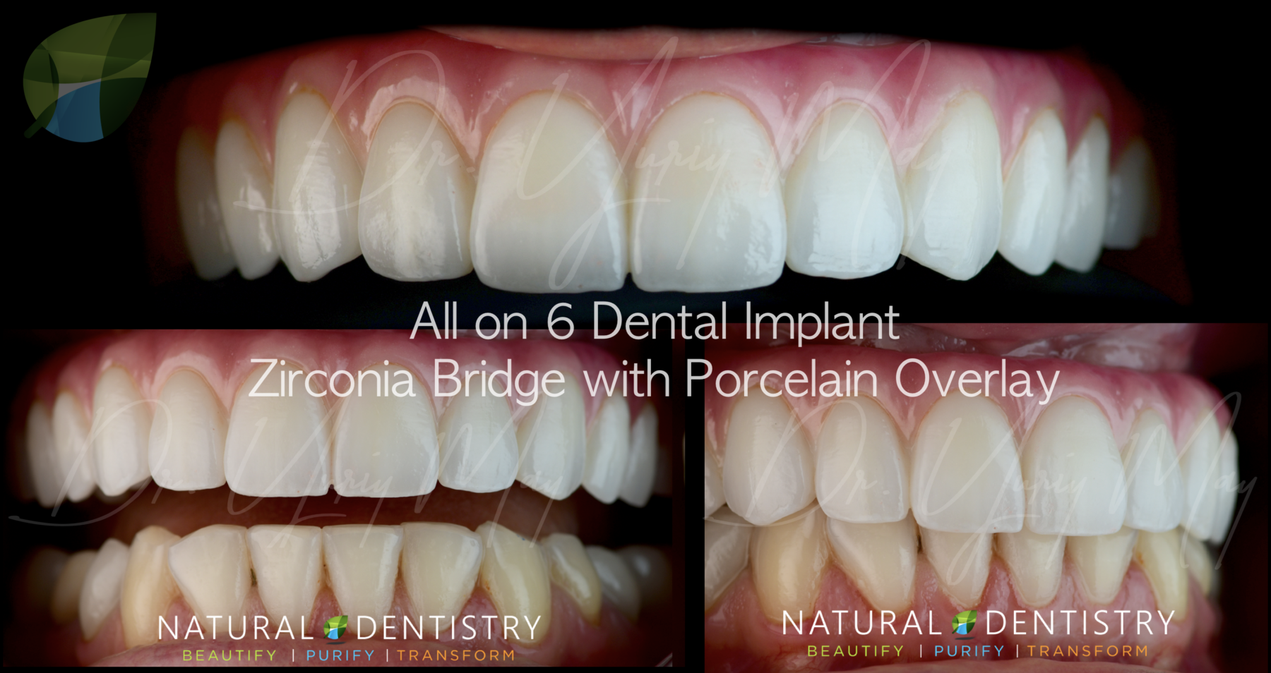 All On 6 Dental Implant Zirconia Hybrid Bridge Denture Best Dental Implant Dentist Full Mouth Reconstruction CT NY NJ