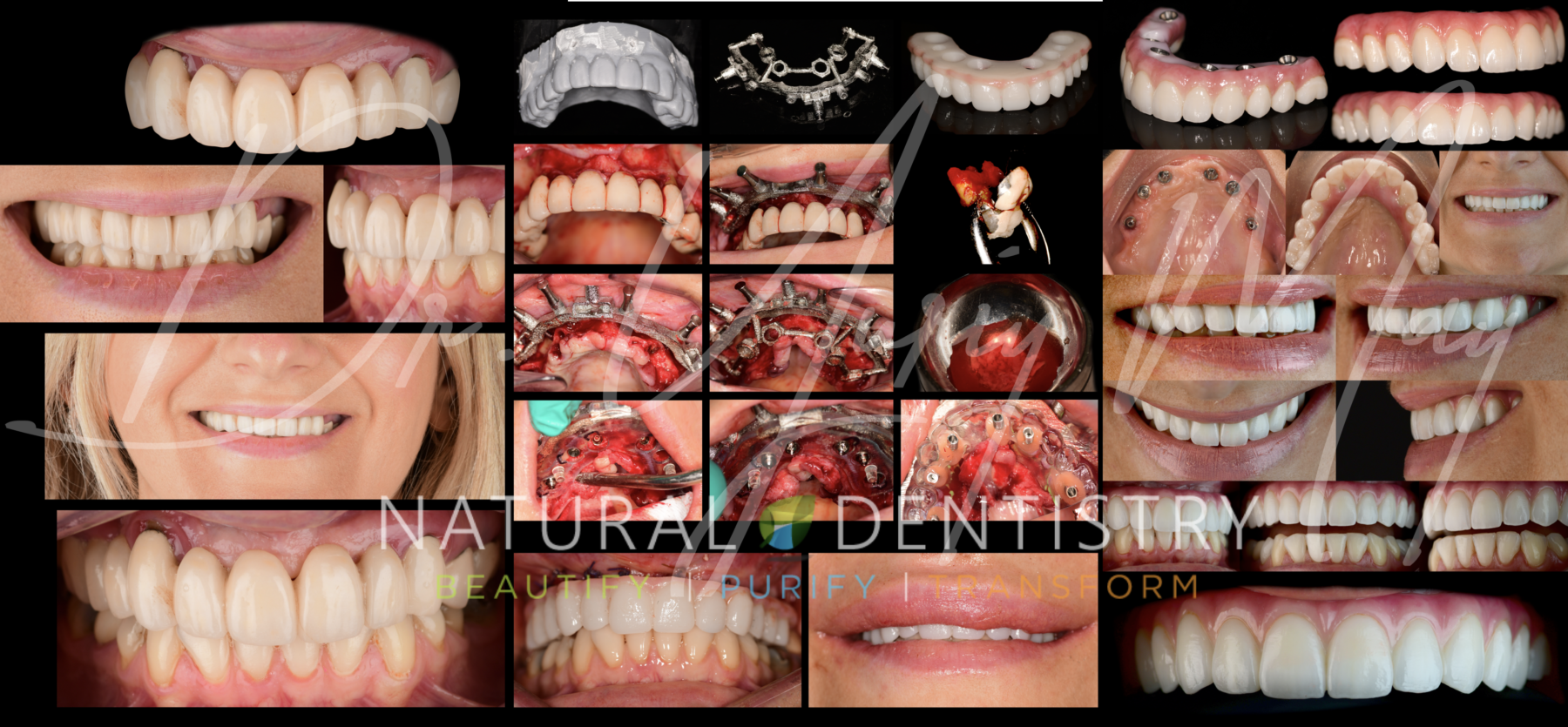 All on 6 Dental Implants - Best Full Mouth Reconstruction Dentist CT NY NJ Dr. May