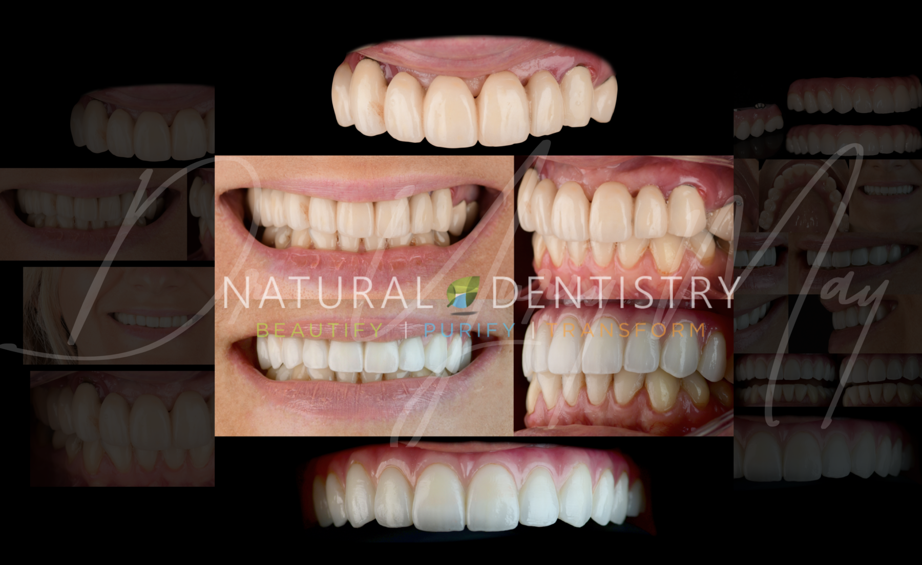All On 6 Full Mouth Reconstruction with Zirconia Immediate Denture Bridge Dr. May Best Implant Dentist