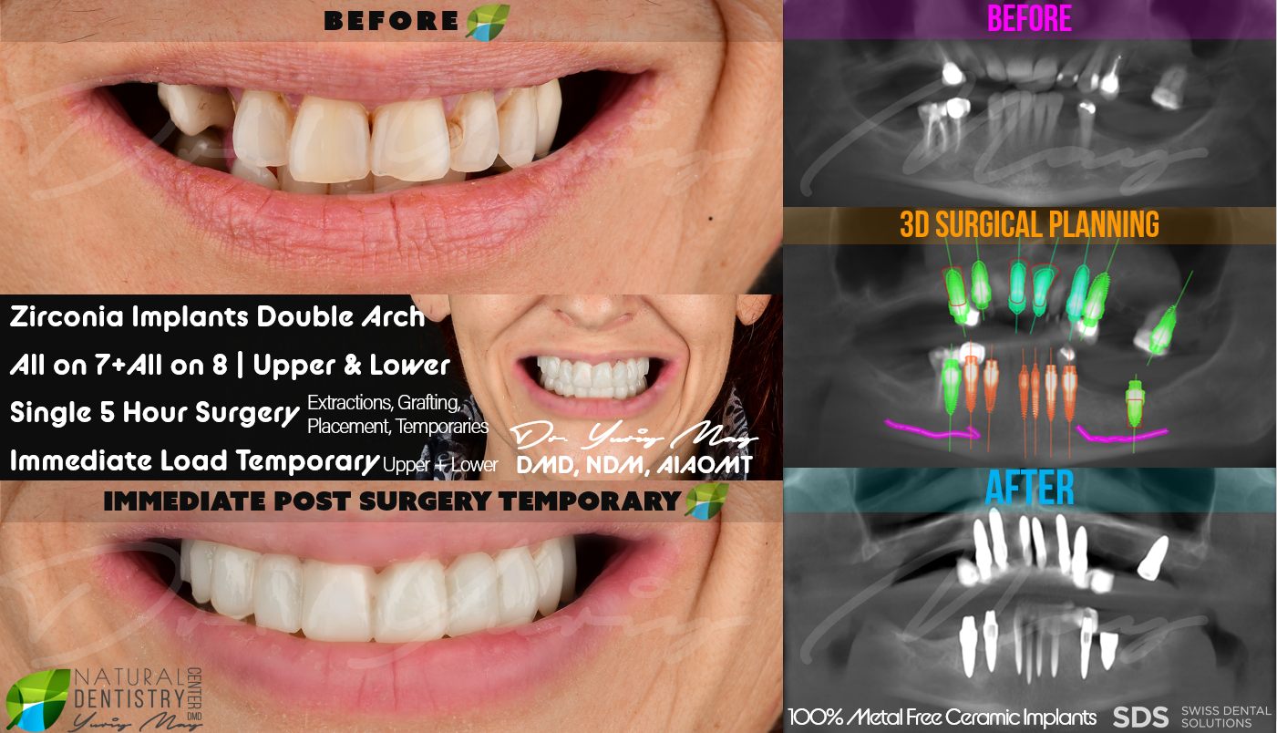 Ceramic Dental Implants All on 6 Double Arch Full Mouth Zirconia Dental Implant All on 8 All on 4 Metal Free Implants Best Implant Dentist USA Natural Dentistry Dr. Yuriy May