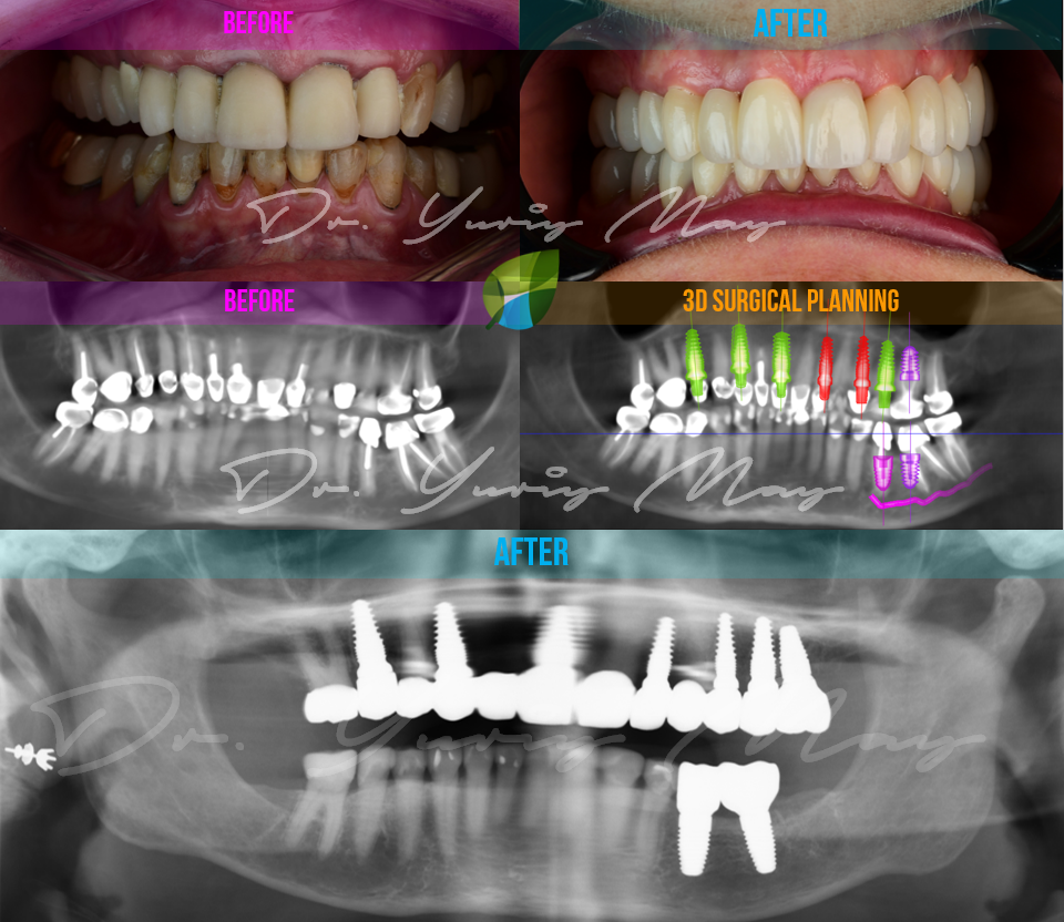 Ceramic Implants Full Mouth Reconstruction 10 Zirconia Dental Implants Mixed Dentition Full Mouth Metal-Free Zirconia Implants Dr. Yuriy May USA