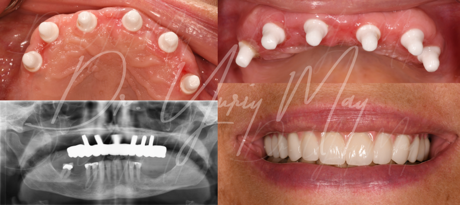 Zirconia Implants Upper All On 6 Dr. Yuriy May Full Mouth Reconstruction Metal Free Implants Ceramic Implants Full Mouth Best Ceramic Implant Dentist USA