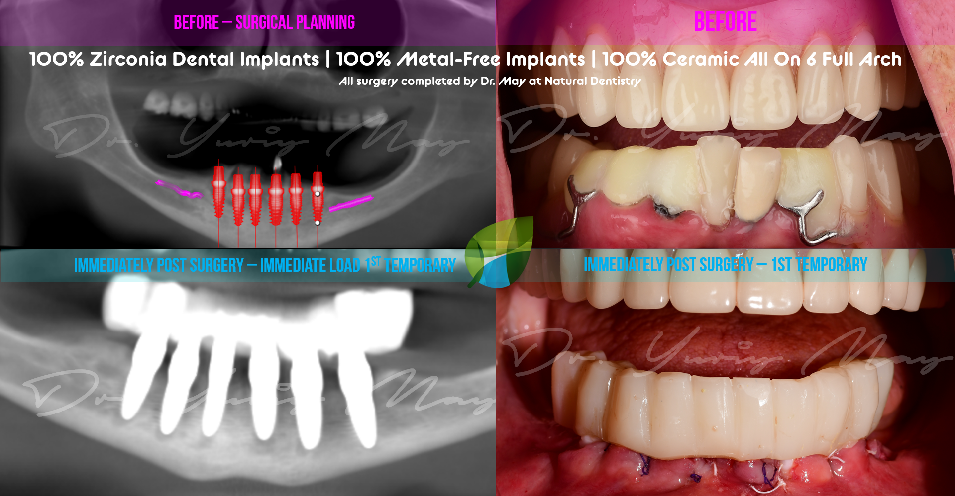 All on 6 Ceramic Implants Zirconia Implants Metal Free