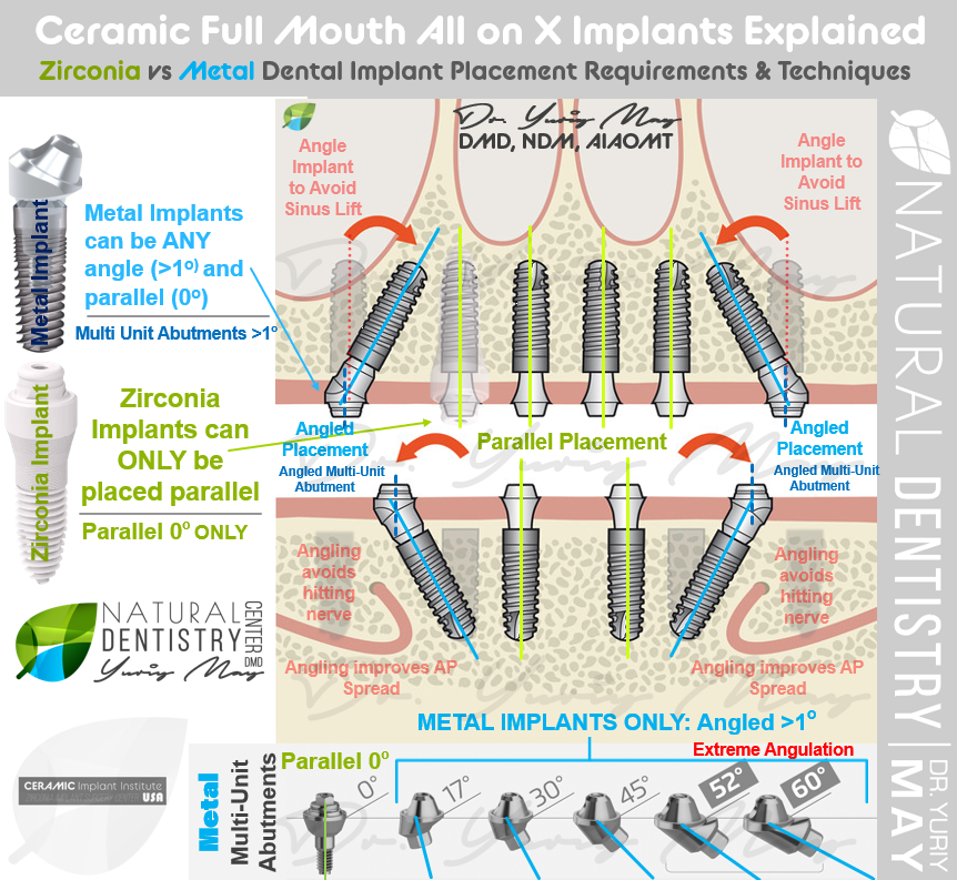 Ceramic vs Titanium Implant Placement Explained - Zirconia Implant Full Mouth Reconstruction All on 4 6 Ceramic Implant Zirconia Implant Dentist Best Ceramic Full Mouth Implant Dentist Upper Arch metal Free Implants Best Zirconia Implant Surgeon