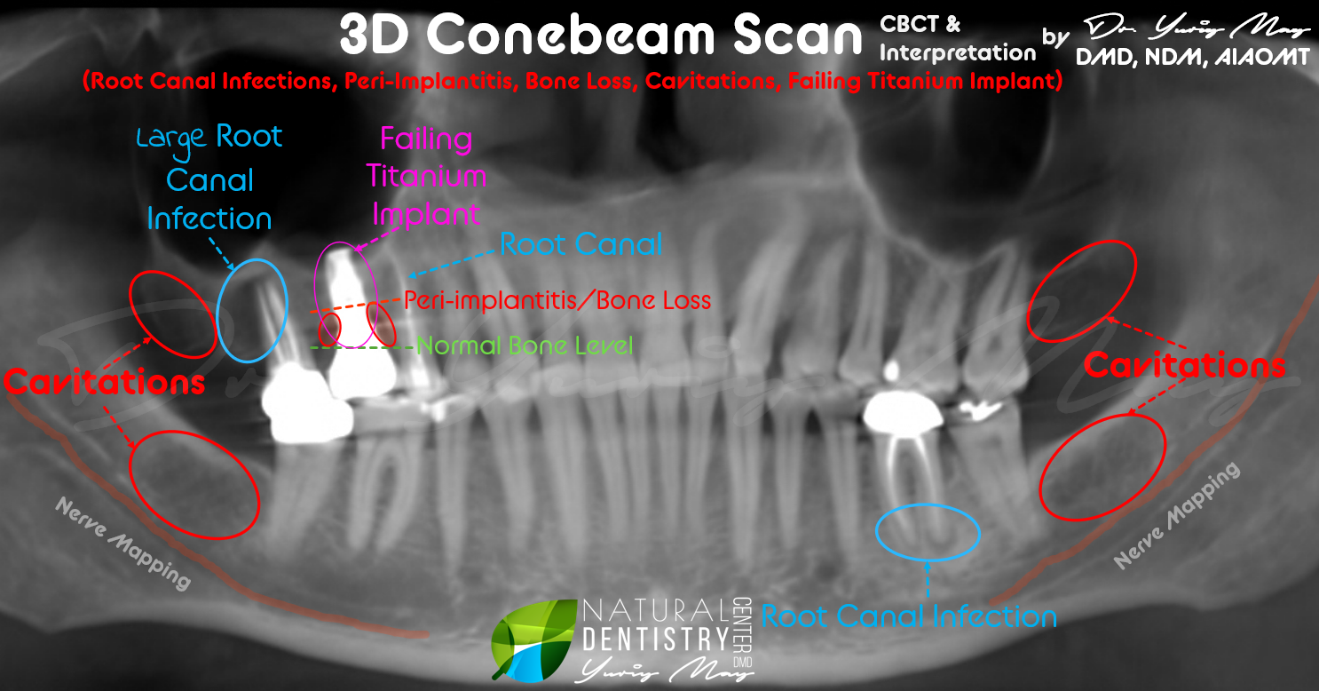 3D Dental Scan Root Canal Infections Diagnose Dental Infections Holistic Dentist CBCT Jaw Bone Infection Best Holistic Dentist Root Canal Alternatives Dangers of Root Canals Dental Caviations