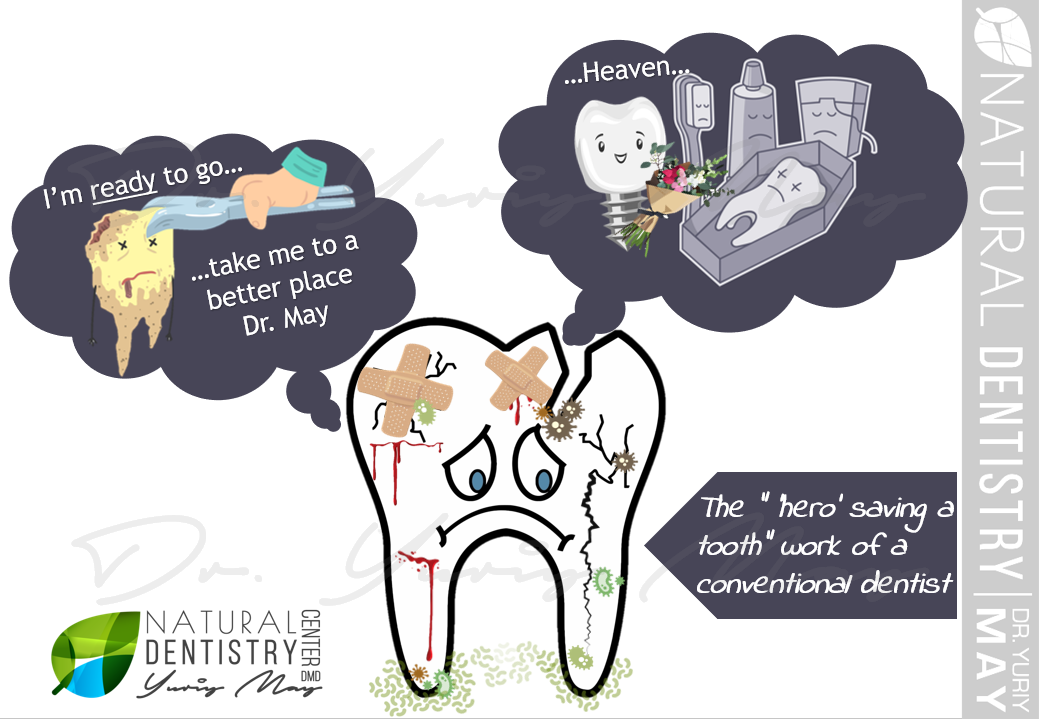 Root Canal Dangers Root Canal Alternatives Conventional Dentist vs Holistic Dentist Root Canals Natural Dentistry Center Root Canal Alternative Dentist