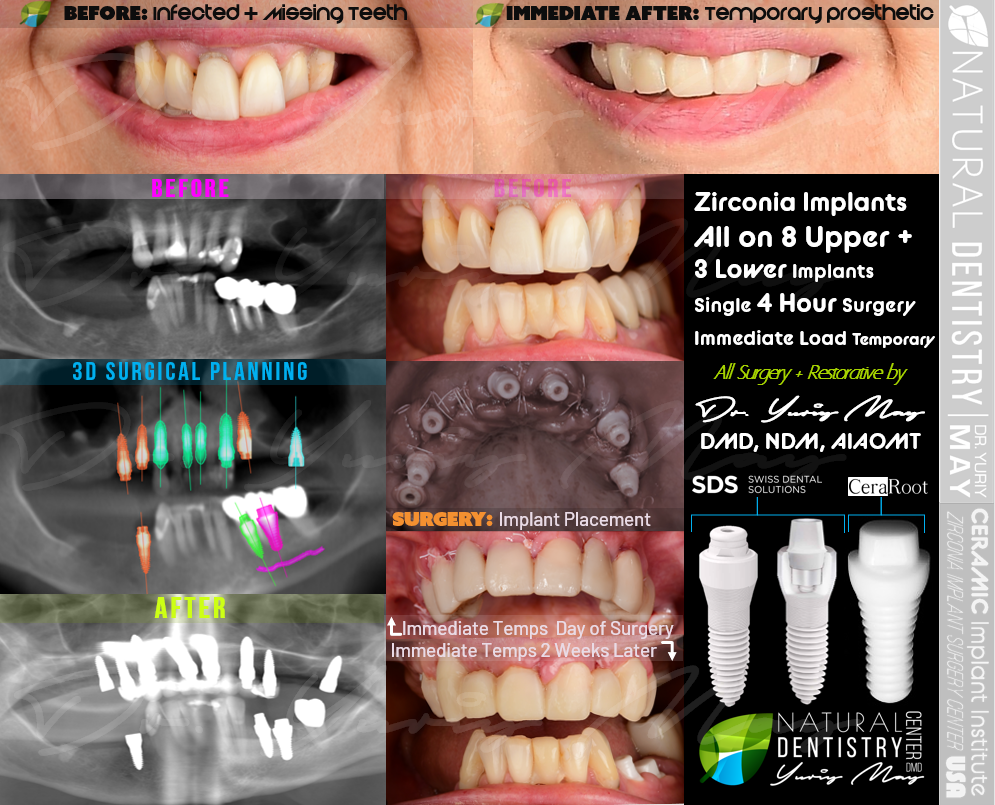All on 4 All on 6 Zirconia Implant Full Mouth Reconstruction All on 4 Ceramic Dental Implants Dr. Yuriy May Best Zirconia Implant Dentist USA