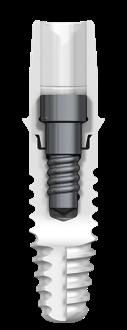 Zeramax XT Zirconia Implant 2 Piece Ceramic Implant Natural Dentistry | Dr. Yuriy May Best Ceramic Dentist